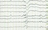 cra-EEG